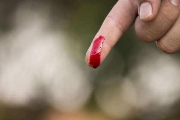 лишаю целак с кровью фото